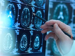 民间中医偏良方专治淋巴瘤 家传秘良方治疗