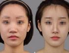 美致医疗达拉斯鼻综合术 现代整形美容新时尚