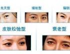 眼袋的表现形式是什么?有什么去除办法?