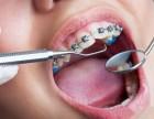 合肥儿童牙齿矫正多少钱