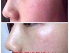 荷柏园专业祛痘祛斑护肤