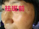 上海俊美祛斑,专业祛斑祛痘