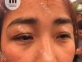 易美中药面膜祛斑祛痘美白