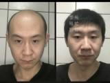 纹发过程需不需要打麻药 广州纹发机构灰米纹发