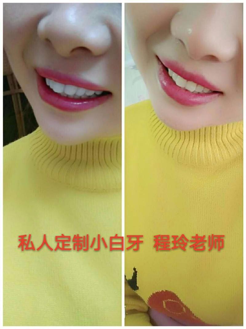 桂林半**纳米浮雕牙齿美白效果好吗?