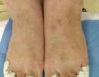 专业治疗灰指甲等脚病