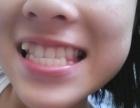 虎牙最好选择正畸治疗 济南圣贝口腔医院