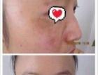 袪斑、祛痘等问题性皮肤