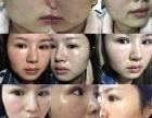 皮肤发红发痒是激素脸? 怎么才能让脸变好?