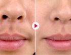 女性唇毛重怎么办?
