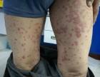 银屑病俗称牛皮癣具有特征性皮损的慢性易于复发的炎症性皮肤病
