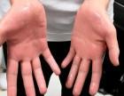 手汗症不做手术的较佳外用止汗方法