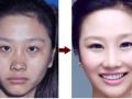 鼻子对于女人一生有多重要?