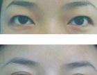 开眼角多久恢复好定位无痕双眼皮眼睛抽脂680元祛眼袋切眉提升