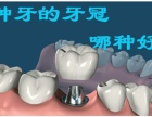 种牙的牙冠哪种好,一般做种植牙多少钱