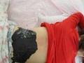 弹式针刀 小针刀 颈椎病 肩周炎 网球肘 腰椎病