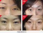 黄晓光解析广州埋线双眼皮价格