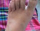 治脚气,脚汗,脚臭,烂脚丫子