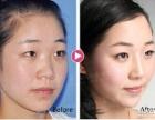 义乌鼻部整型整容手术