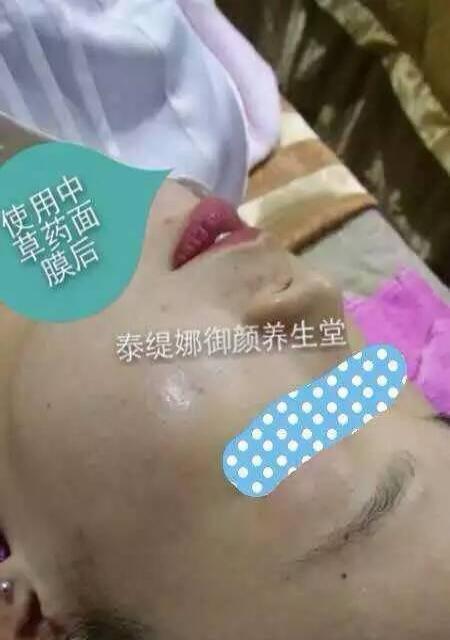 祛斑祛印美白细致肌肤一疗程中药全做到