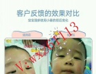 宝宝湿疹怎么办?有什么好办法吗?小春真的可以治湿疹