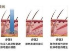 激光去老年斑术后护理如何做