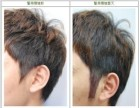 烟台洛神植发:怎么样解决鬓角稀少问题