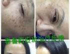 春曼祛斑祛痘激素脸加盟 美容SPA/美发