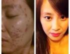 北京东恒时代附近祛痘好不留疤安全无痛效果快价格优惠可告别痘痘