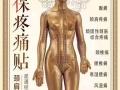 中医针灸贴(国家专利)