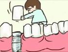 种植牙为什么那么贵