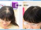 头发稀少怎么办哆来咪发补发头发稀少可以织发吗