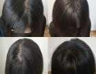 鼎点视觉纹发为有着各种秃顶头发稀疏等患者服务加以改善