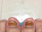 合肥老偏方治疗灰指甲