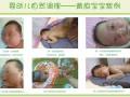 淄博七彩虹水疗调理宝宝湿疹 黄疸