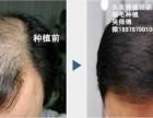 体毛种植术 韩南秀培训
