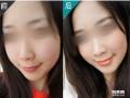 宁波3.8女人节瘦脸针多少一针?