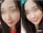 宁波3.8女人节瘦脸针多少一针