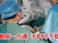 北京哪家癫痫医院最专业 癫痫一点通APP