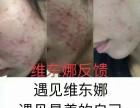维东娜面霜祛粉刺是不是骗人谁用过