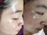 中藥膜祛斑祛痘秘方蓮月白代理