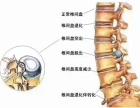 北京百灵奇草贴治疗腰椎间盘突出效果怎么样?