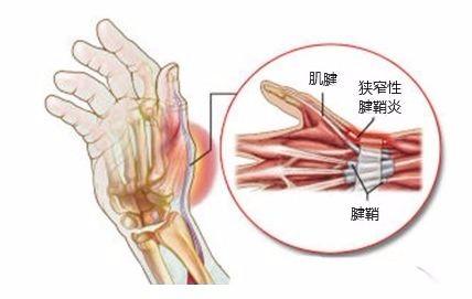重庆长城跟腱断裂的治疗及注意事项