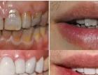 纳米釉质牙齿美白