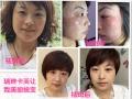 瑞琳卡芙皮肤问题修复 解决皮肤问题祛斑祛痘