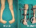 重庆长城医院截骨延长术治疗12岁西藏女孩