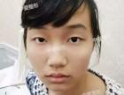 武汉中爱祁向峰教授做双眼皮怎么样?