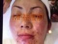秘方养肤面膜加盟 美容SPA/美发