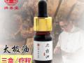 过敏性鼻炎6