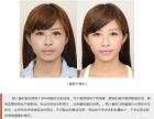 非法瘦脸针可能让你越变越丑!